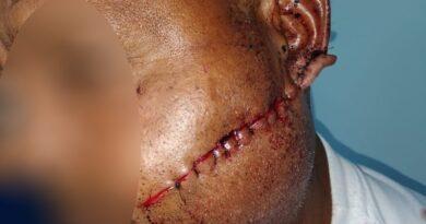 Critican forma en que cosieron herida de un hombre en hospital de San Juan