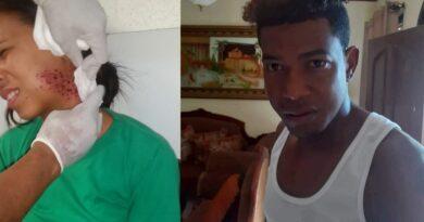 MAS ABUSOS: Hombre intenta matar ex novia con una chilena, le dio un cartuchazo