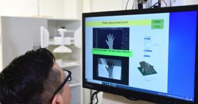 """Estos investigadores proponen una máquina de rayos X """"portátil"""" para autodiagnósticos"""