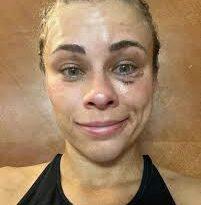 """Vanzant, estrella de """"UFC"""", que tiene imágenes """"atrevidas"""", tiene fuertes moretones en la cara"""