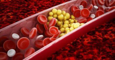 Metabolismo de los lípidos: todo lo que debes saber