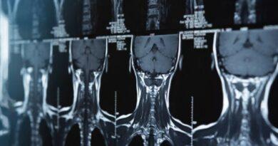 ¿Qué es un meduloblastoma y cómo se puede tratar?