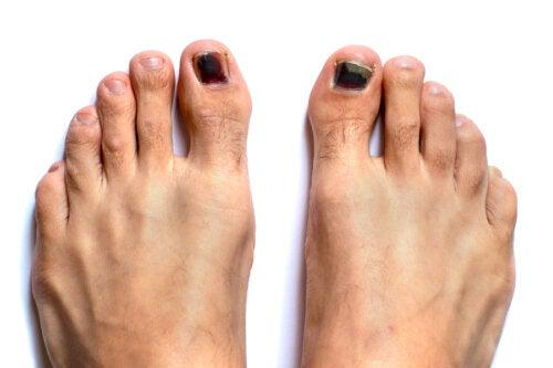 Uñas negras de los pies: ¿cómo tratarlas?