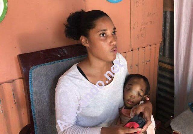 Pide Primera Dama la ayude para tratar tumor en rostro de su hija