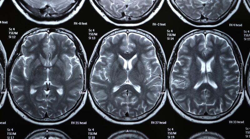 Un nuevo estudio concluye que incluso los casos leves de covid-19 podrían conllevar pérdida de materia gris