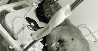 Hieren de bala a un hombre en SFM; acusan a Melky El Menor