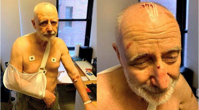Buscan motoristas dieron paliza a hombre de 76 años por reclamarles alta velocidad y ruidos en parque del Alto Manhattan