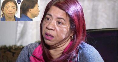 Concejala dominicana Carmen Castillo acusada por atropello y fuga en intersección de Providence