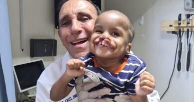 Fundación Cruz Jiminián ha operado 6,500 infantes con labio leporino y paladar hendido